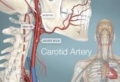 Learn more about Carotid Artery